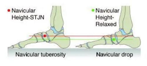 Navicular Drop Test - El Paso Chiropractor