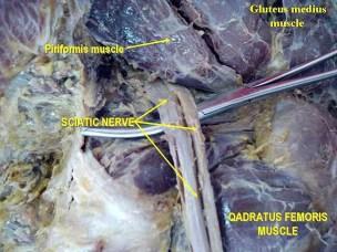 Causas del Síndrome Piriformis piriformis Gluteus_medius_muscle