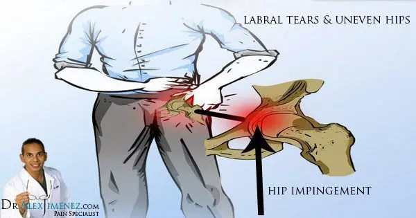 blog picture of labral tears