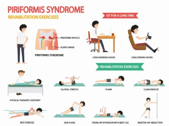 Causes of Piriformis Syndrome piriformis syndrome rehabilitation exercises