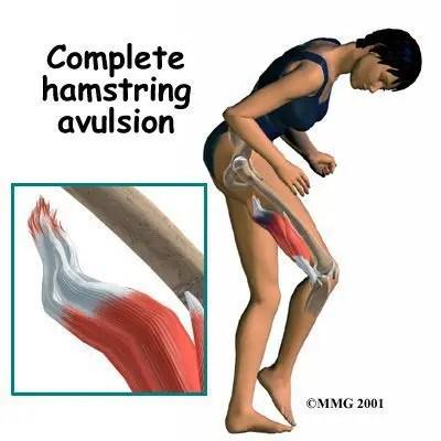 Complete Hamstring Avulsion Live - El Paso Chiropractor