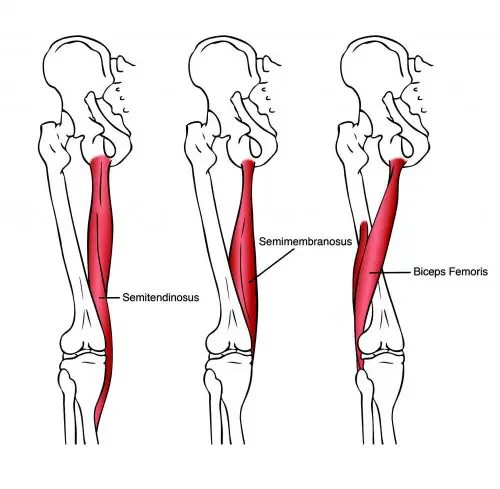 Origin of the Hamstring Muscles - El Paso Chiropractor