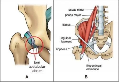 Kalça Anatomisi Diyagramı - El Paso Kiropraktörü