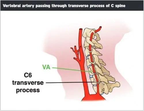 Vertebral Arter Geçen Transvers Proses - El Paso Kiropraktörü
