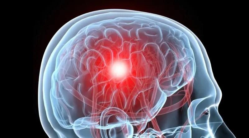 Dolor de cabeza meses después de una conmoción cerebral
