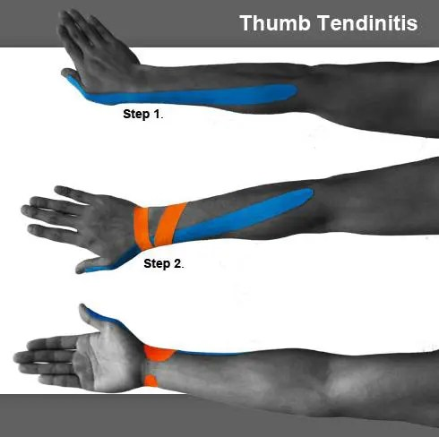 blog picture of male thumb in three stages with kinesiotape applied to forearm and thumb