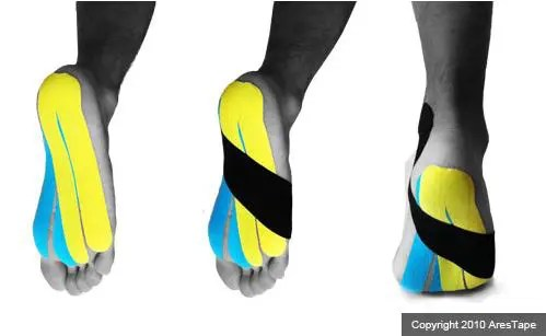 blog picture of male foot with kinesiotape applied to bottom of foot