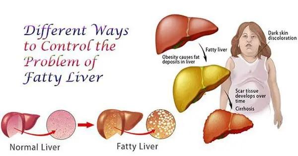 blog illustration of a fatty liver