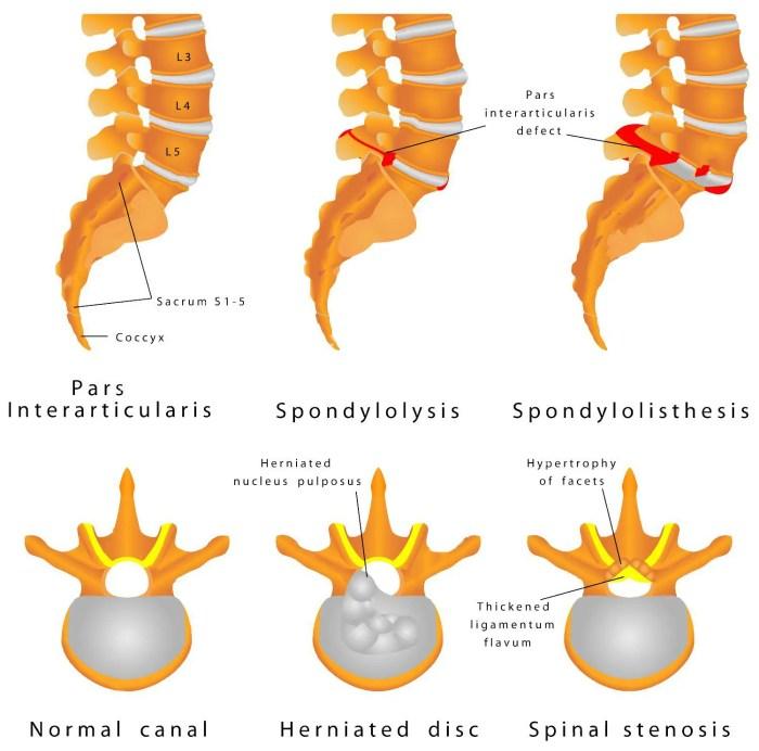 espondilólisis espondilólisis es un defecto en el anillo óseo que comprende