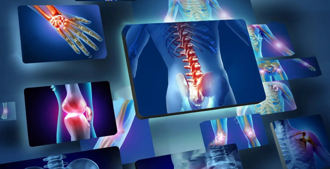 blog picture of various areas where arthritis can hit