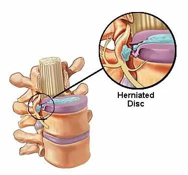 Anatomía de los discos herniados - El Paso Chiropractor