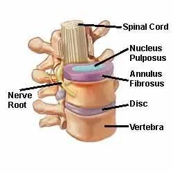 Anatomía de los discos intervertebrales - El Paso Chiropractor