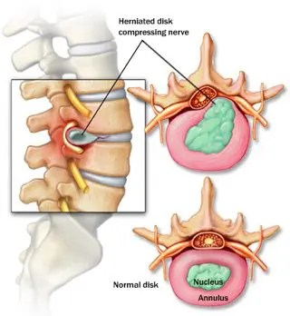 Herniated Disc Detailed Diagram - El Paso Chiropractor
