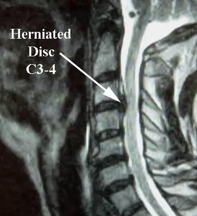 Herniated Disc MRI - El Paso Chiropractor
