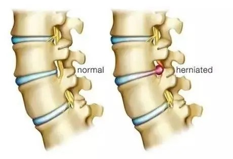 Lateral Herniated Disc - El Paso Chiropractor