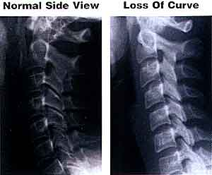 Loss of Cervical Curvature X Ray - El Paso Chiropractor
