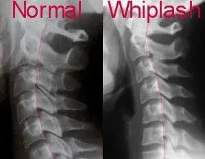 Normal y latigazo X Rayos - El Paso Chiropractor