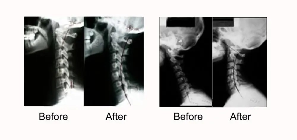 Whiplash Improvement X-Rays - El Paso Chiropractor