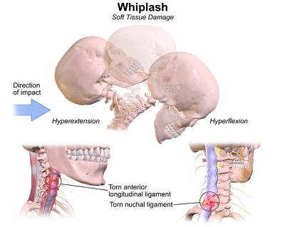 Whiplash Injury Diagram - El Paso Chiropractor