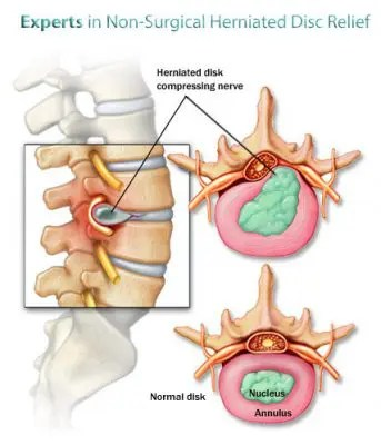 herniated-disc-treatment - El Paso Chiropractor