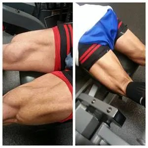 Blood Flow Restriction Therapy Hamstrings - El Paso Chiropractor