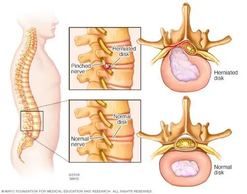 Exercises and Stretches for Herniated Discs | Scientific ...