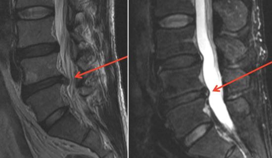 Herniated Disc More MRIs