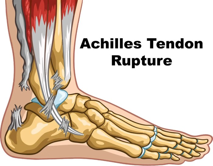 11860 Vista Del Sol, Ste. 128 Achilles Tendon Rupture/Calf Injuries