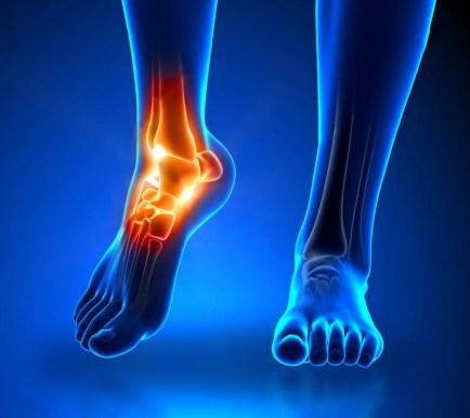 dolor de artritis en el tobillo en detalle anatomía