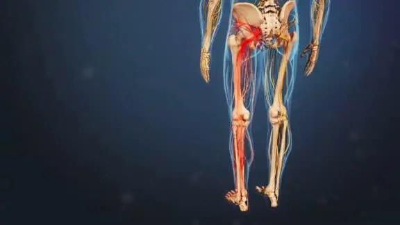 sciatic nerve path