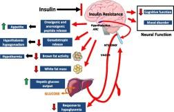 ഉപാപചയ Hypothalamic വീക്കം ആൻഡ് ഇൻസുലിൻ പ്രതിരോധം