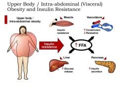 metabolic Visceral Adiposity Insulin resistance