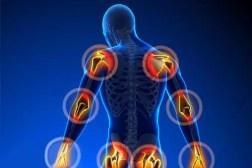 remedios-para-dolor en las articulaciones-22589-1