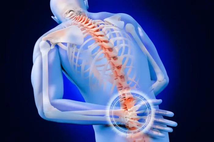 Изображение человеческого тела, показывающее скелетную структуру с акцентом на поясничную грыжу межпозвонкового диска. | Эль Пасо, Техас Хиропрактик