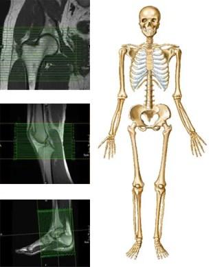 deformând artroza șoldului ce este
