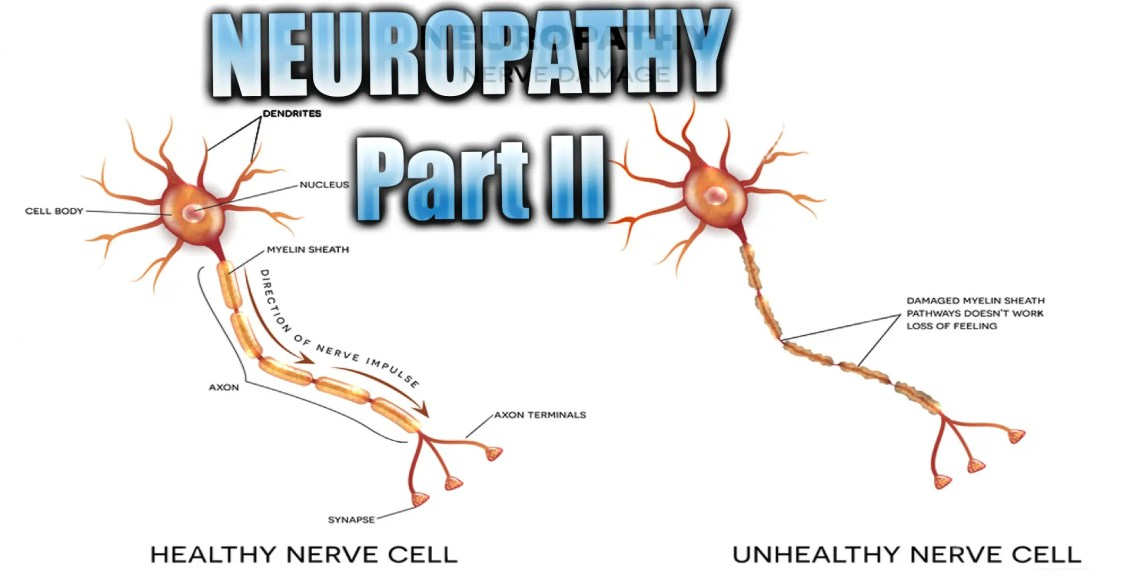 presentación de neuropatía el paso tx.