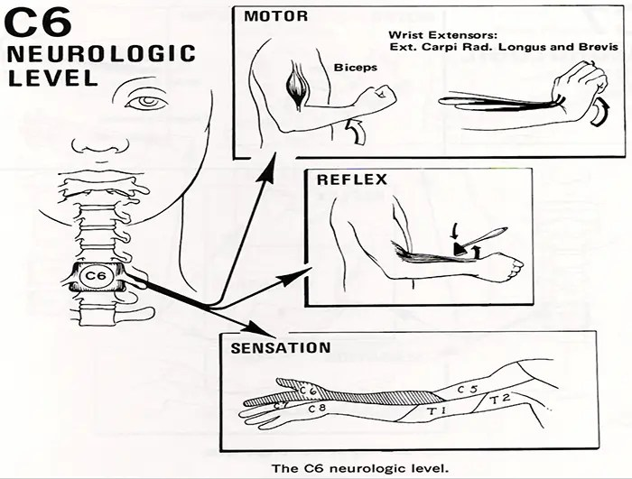 perawatan chiropractic radiculopathies el paso tx.