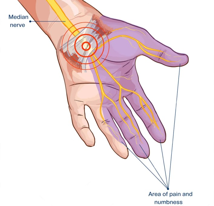 chiropractic treatment carpal tunnel syndrome el paso tx.