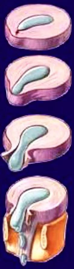 radiculopathies chiropractic care el paso tx.