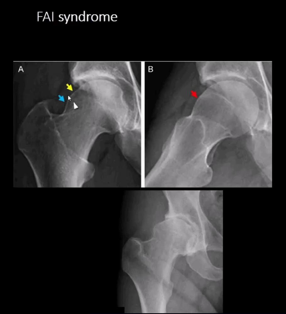 diagnosi artrite e neoplasie dell'anca el paso tx.