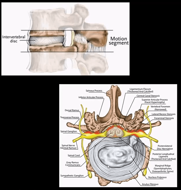 spinal arthritis el paso tx.