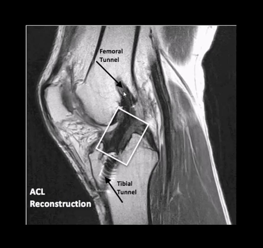 Dolor de rodilla por trauma agudo el paso tx.