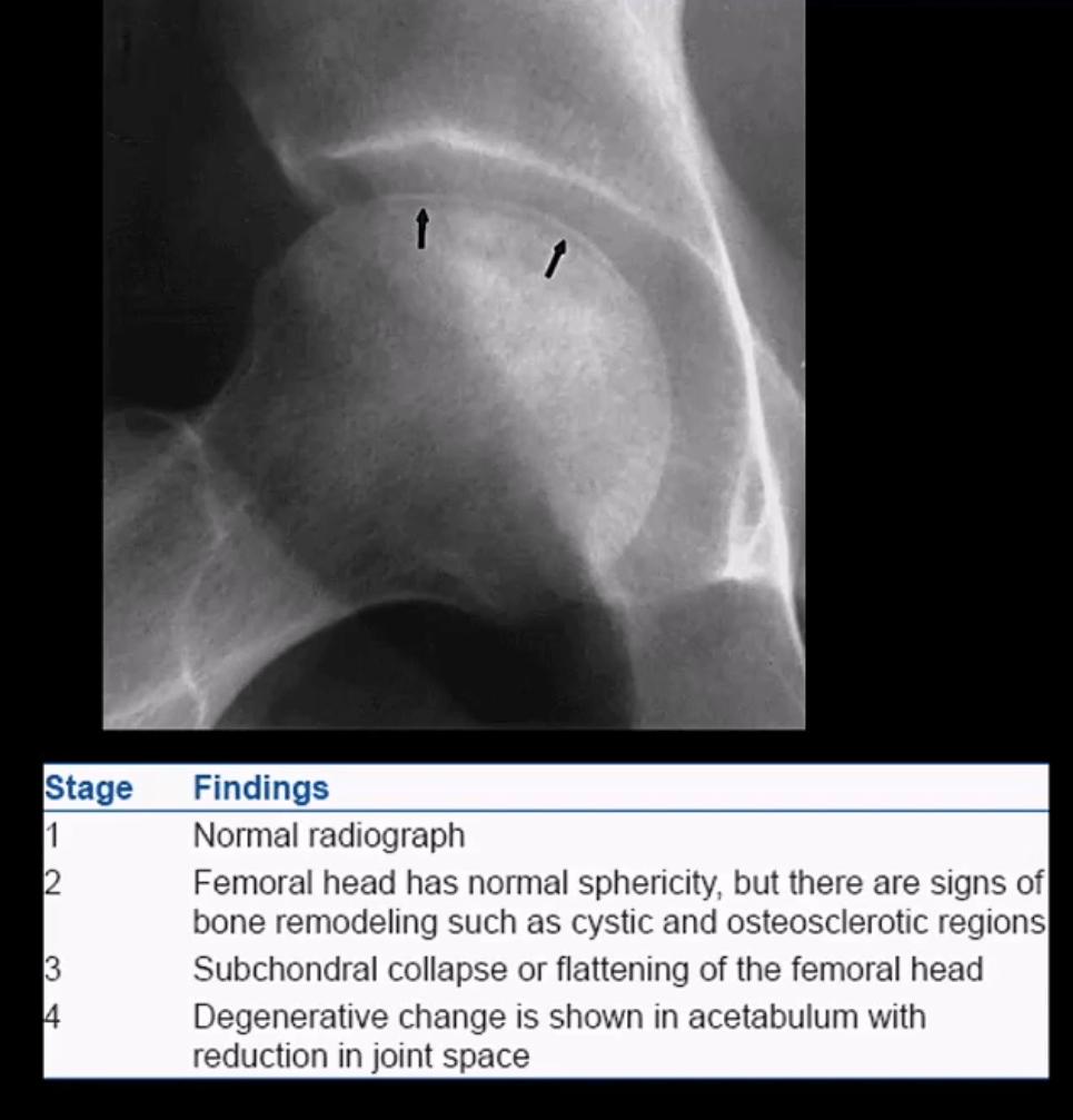 diagnosi artrite e neoplasie dell'anca el paso, tx.