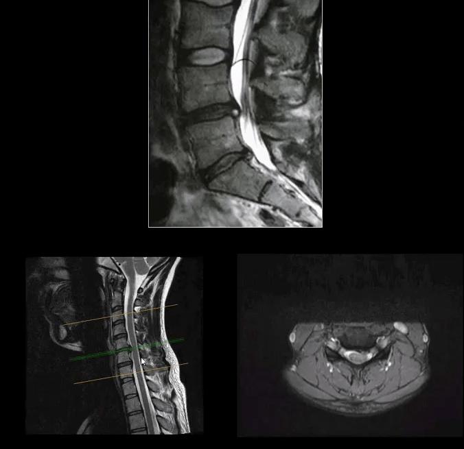 artrite espinal el paso tx.