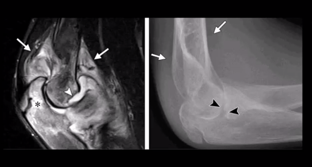 elbow imaging el paso tx.