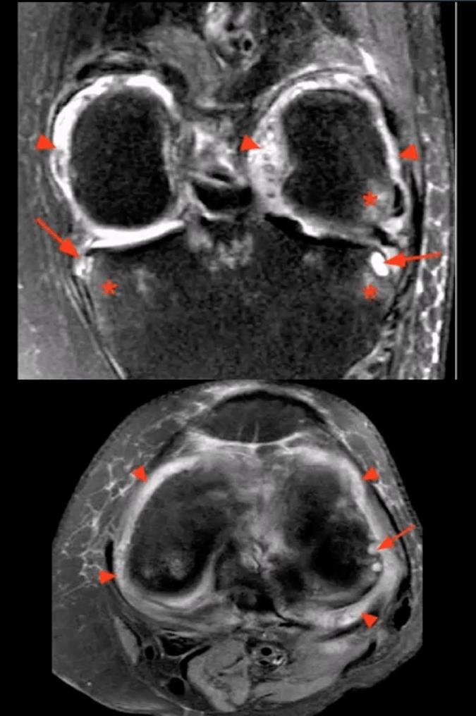 artrite del ginocchio cura chiropratica el paso tx.