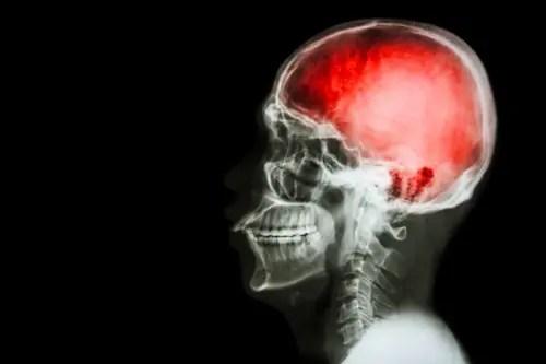 hafif travmatik beyin yaralanmaları kayropraktik tedavi el paso, tx.