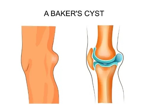baker's cyst chiropractic care el paso tx.