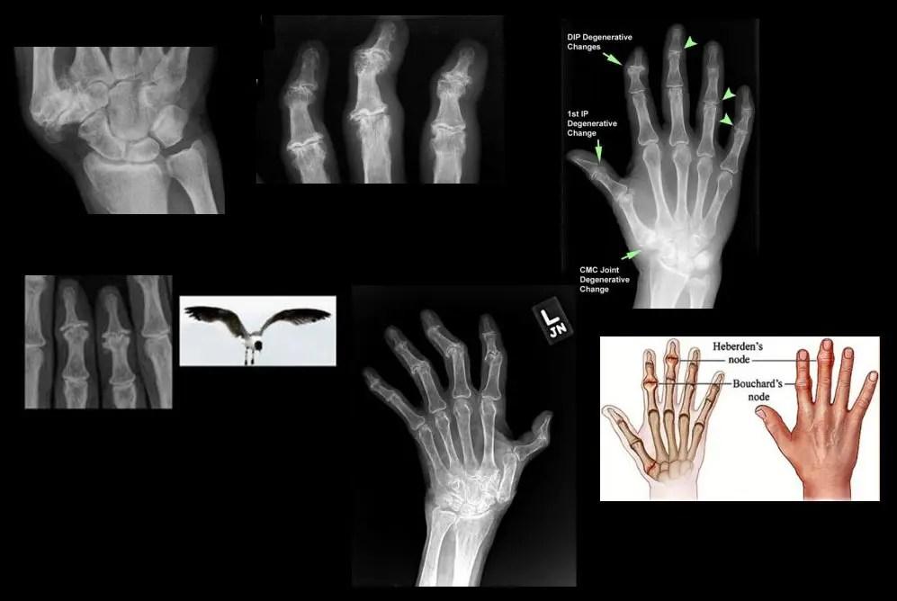 ручная диагностическая визуализация el paso tx.