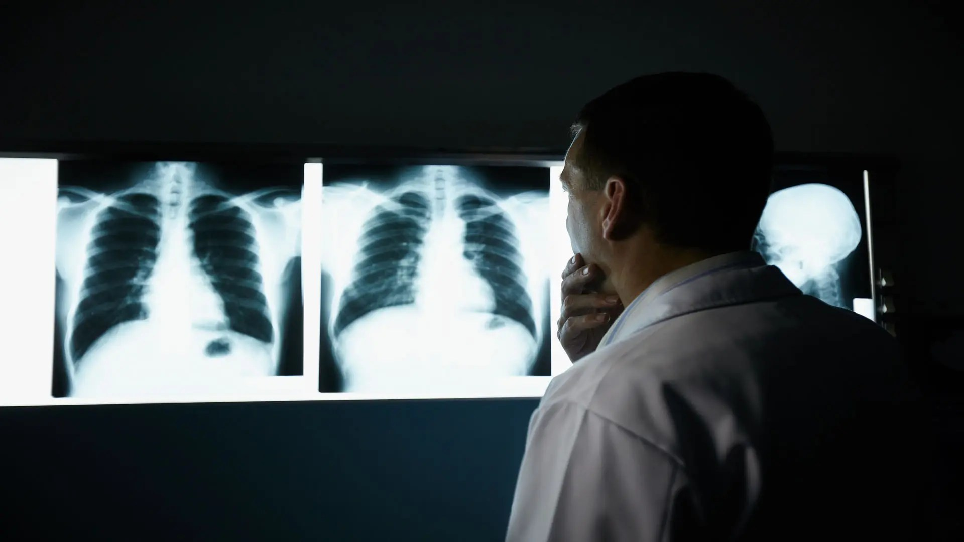 Calprotectina poate diagnostica cancerul